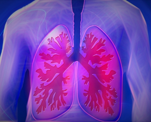 lung conditions